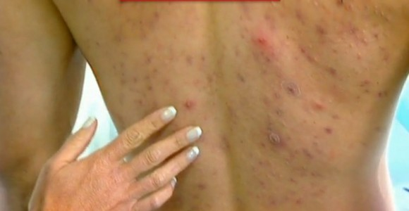 acné espalda causas
