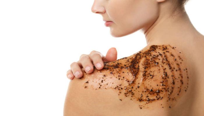 acne espalda causas