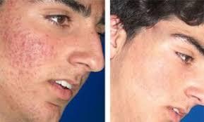 acné vulgar moderado