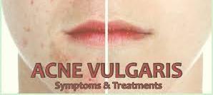 acné vulgar pdf