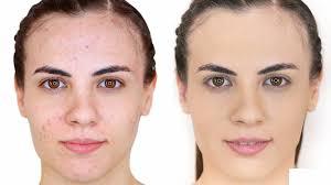 acido salicilico para el acne pdf