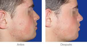acne leve tratamiento casero
