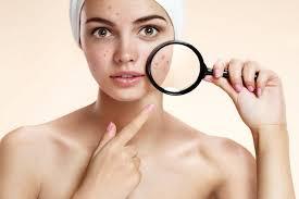 acne leve imagenes