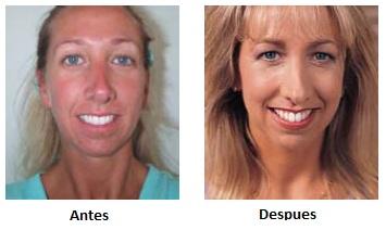 acido salicilico para el acne productos