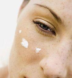 mascarilla acido salicilico para el acne
