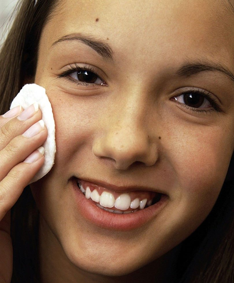 acne leve en la frente