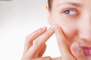 acne leve a moderado