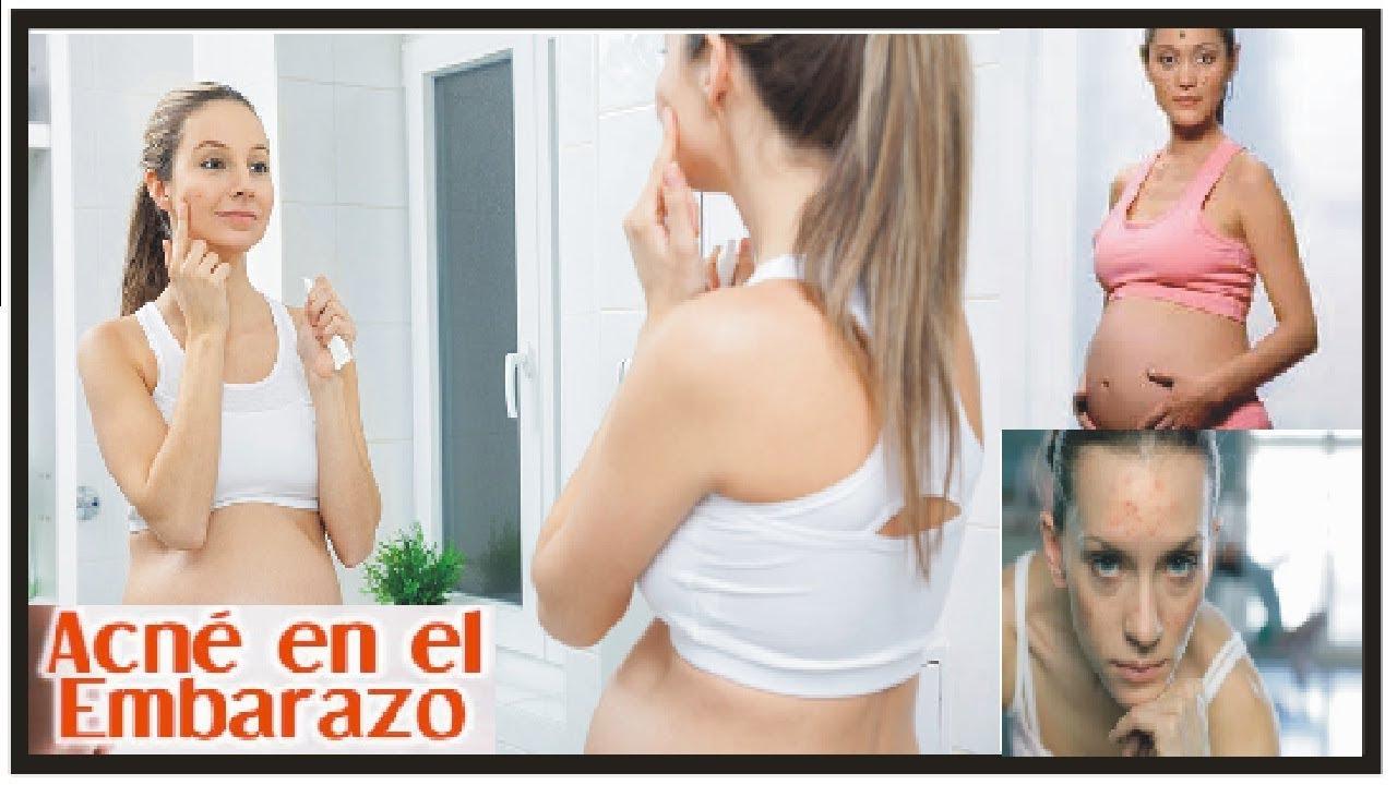 tratamiento para acne en embarazadas