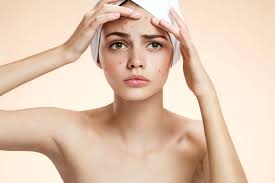 acné adulto mujer