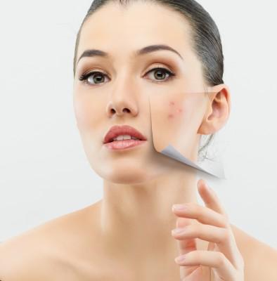 acné adulto hombres