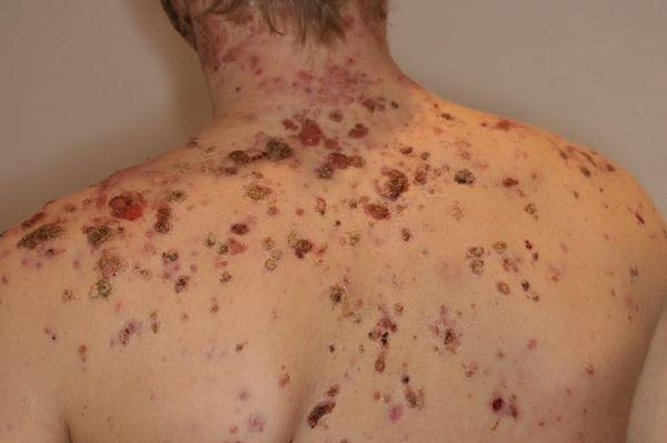 acne conglobata tratamiento natural