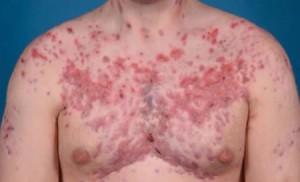 acne conglobata pdf