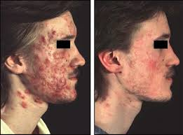 acne conglobata wikipedia