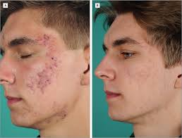 acne conglobata cie 10