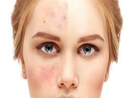 acné definition