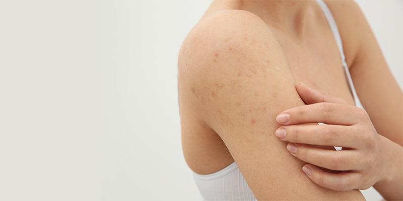 acne espalda solucion