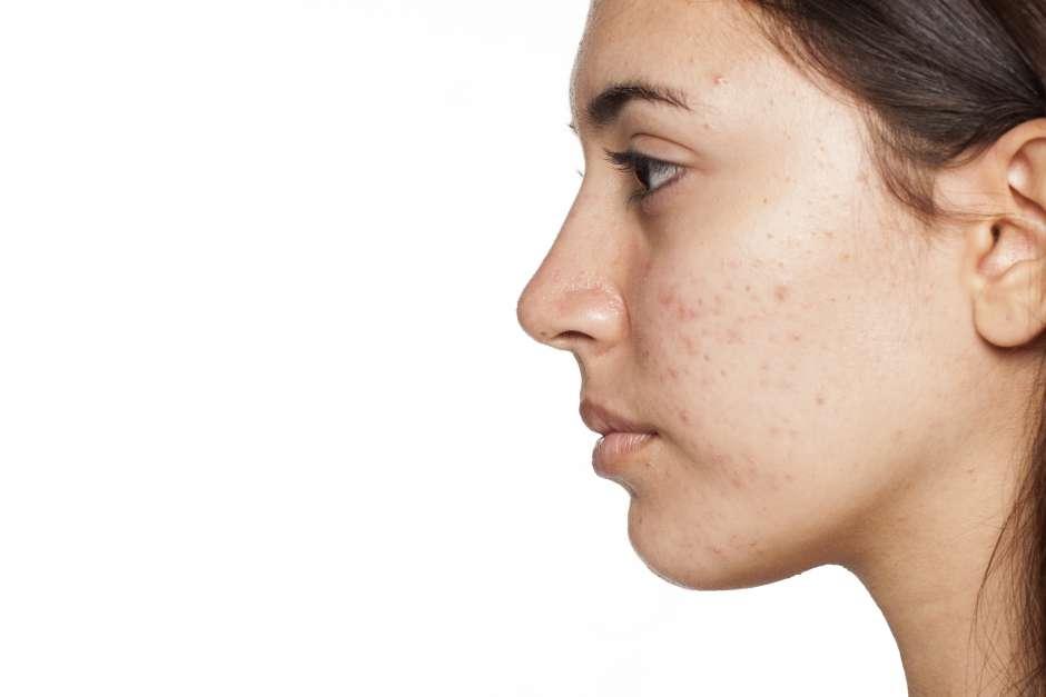 acné hormonal