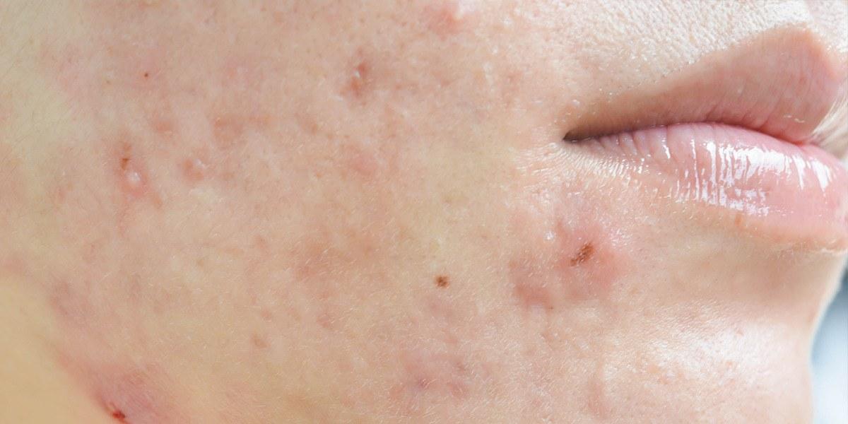 acné hormonale homéopathie