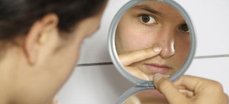 acne juvenil