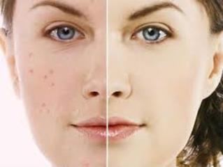 acne juvenil tratamiento