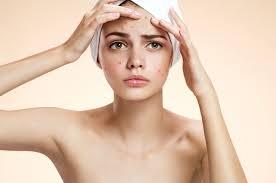 acne juvenilis