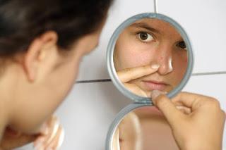 acné quístico y acné conglobata