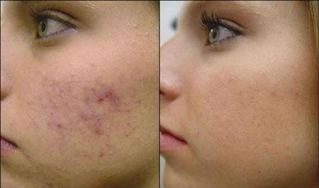 acné quístico severo