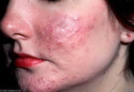 acne rosacea tratamiento natural