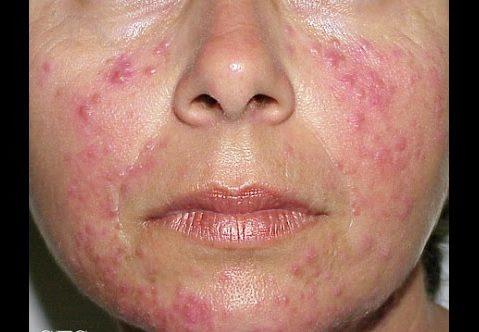 acné rosacea causas