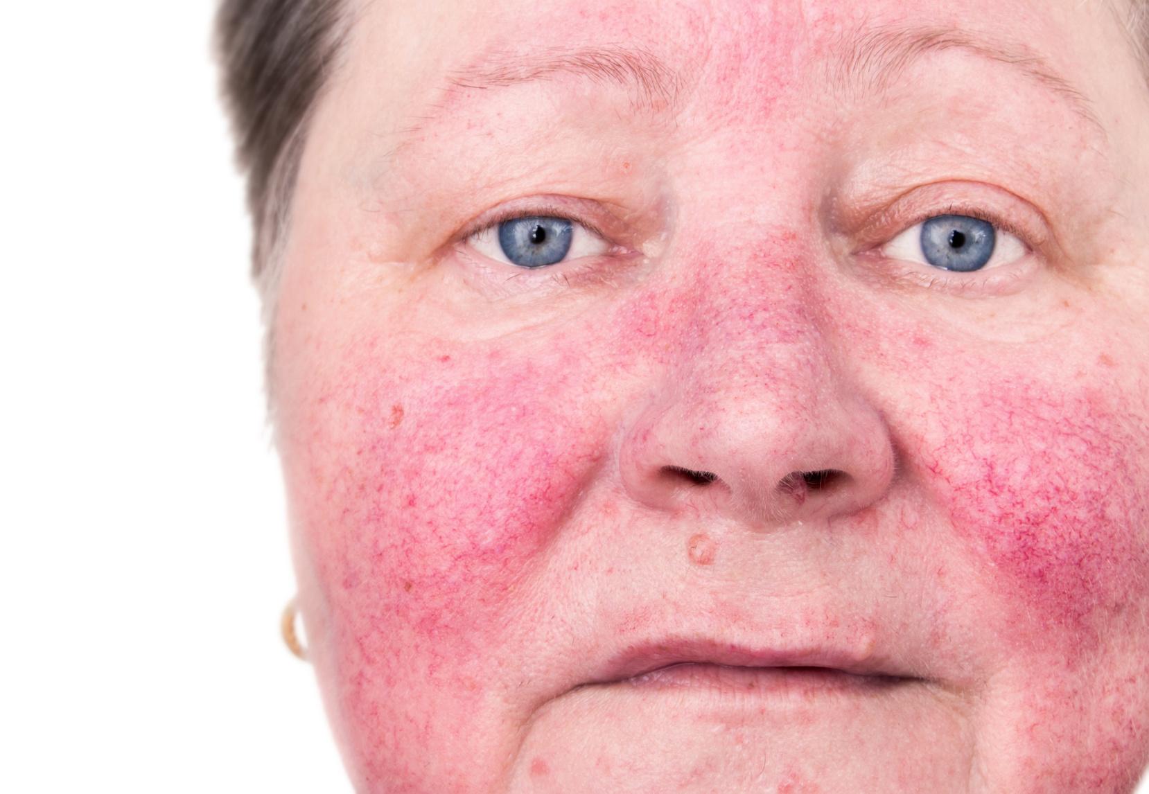 acne rosacea fotos