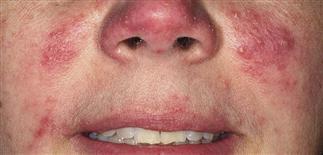 acne rosacea antibiotics