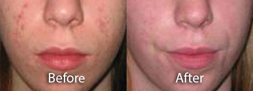 acne rosacea and menopause