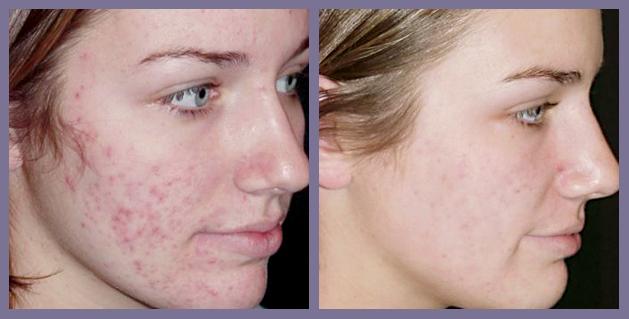 aceite de arbol de te acne