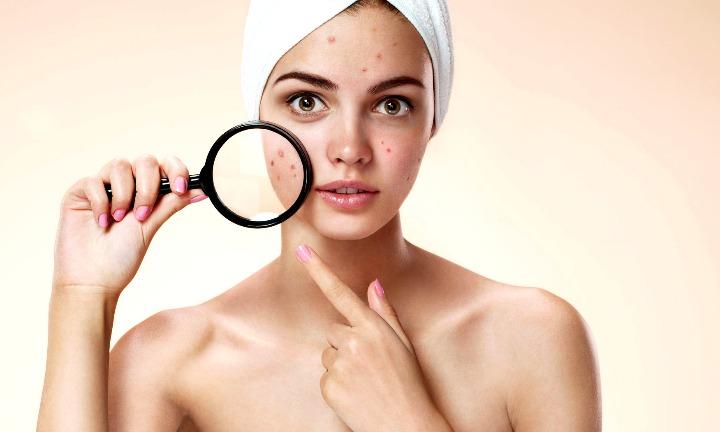 acné tratamientos