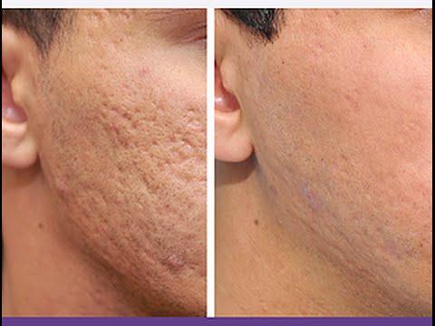 cicatrices acné dos