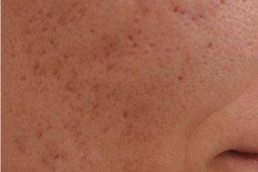 cicatrices acné visage