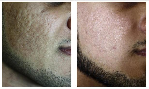 cicatrices acné huiles essentielles