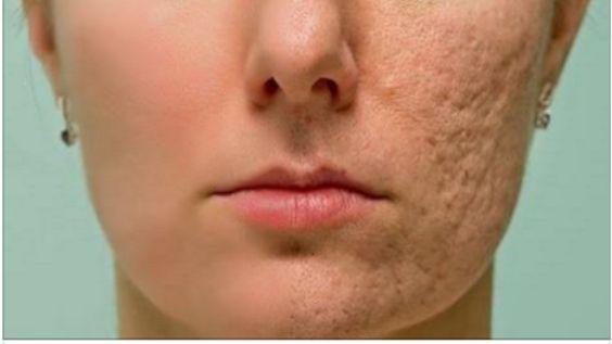 cicatrices de acne pdf