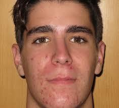 eliminar marcas de acne con laser