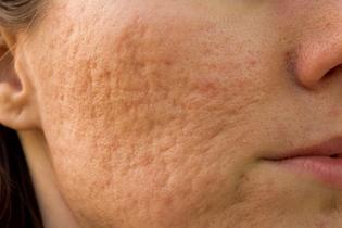 eliminar marcas de acne en la espalda