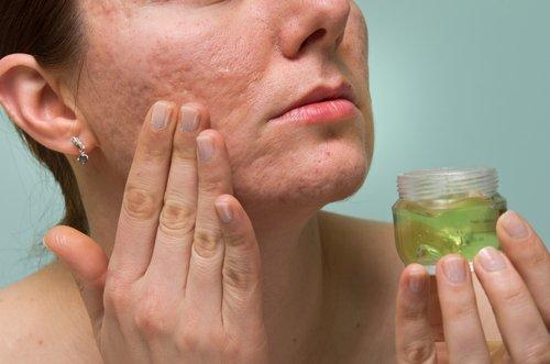 eliminar marcas de acne rapidamente