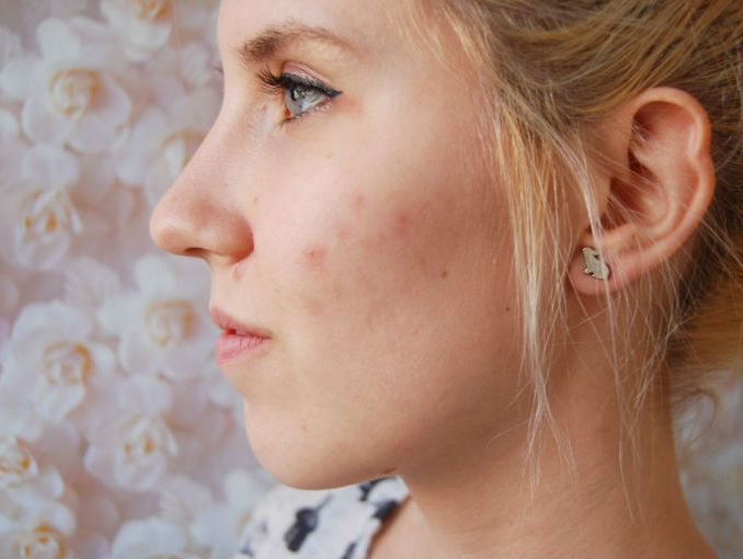 eliminar marcas de acne rapido