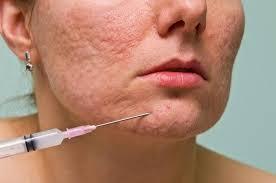 eliminar marcas de acne naturalmente
