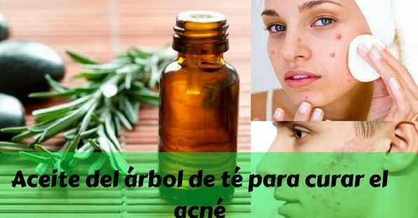arbol de te y acne