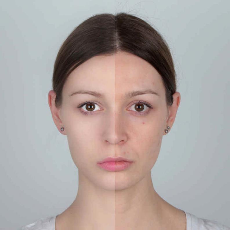 cicatrices acné bicarbonate de soude