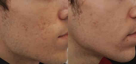 cicatrices acne eliminar
