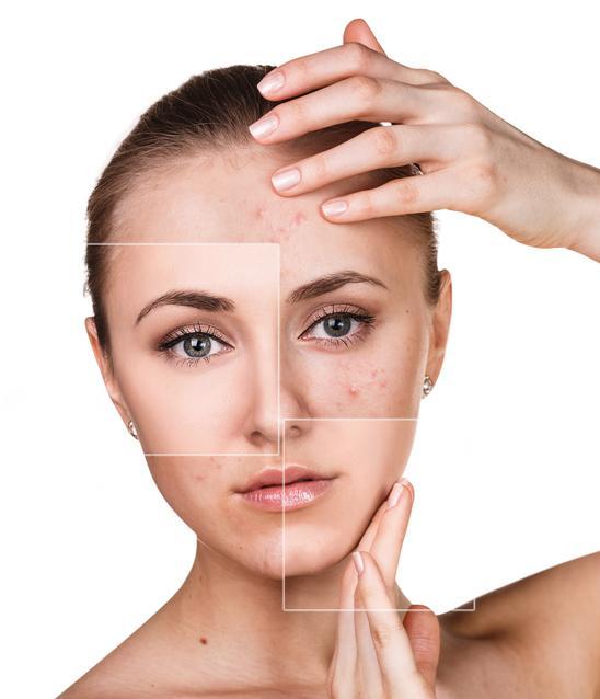 acne leve moderado y grave