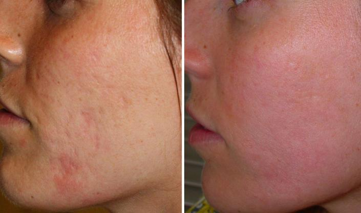 cicatrices acne antes y despues
