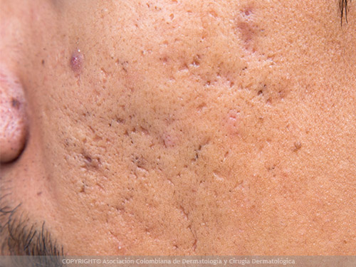 cicatrices acne remedios caseros
