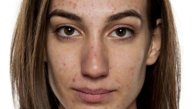 acné vulgaris (grado i a iii)